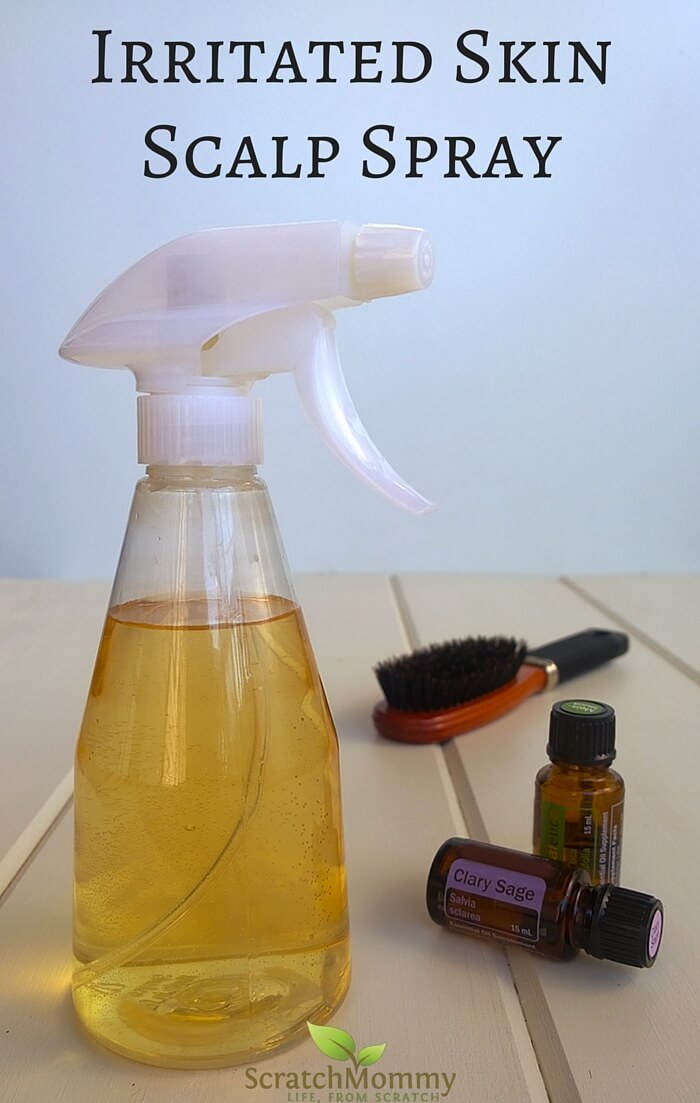 Irritated Skin Scalp Spray - Knock out your red, dry, itchy scalp...naturally! Scratch Mommy